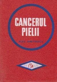 Cancerul Pielii (A. Dimitrescu)